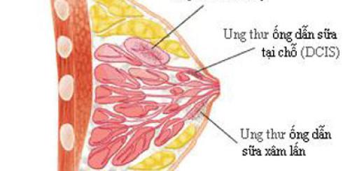 Nấm lim xanh trị bệnh ung thư vú