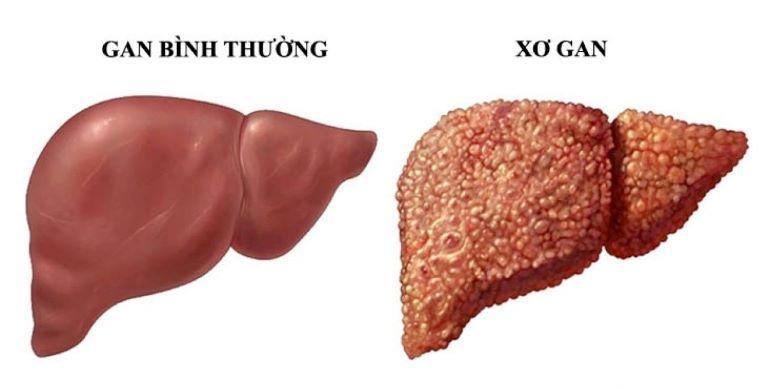 Bệnh xơ gan rất nguy hiểm nếu không được chữa kịp thời