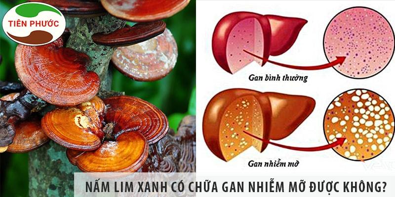 Nấm Lim Xanh Có Chữa Bệnh Gan Nhiễm Mỡ được Không?