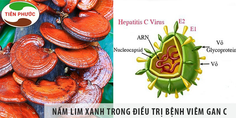 Tác Dụng Của Nấm Lim Xanh Trong Việc điều Trị Bệnh Viêm Gan C