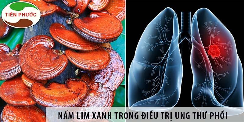 Nấm Lim Xanh Có Chữa Bệnh Ung Thư Phổi được Không?
