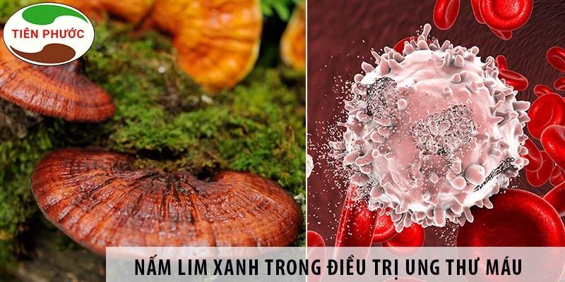 Nấm Lim Xanh Có Chữa Ung Thư Máu được Không?