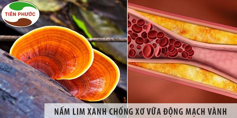 Nấm Lim Xanh Có Chống Xơ Vữa động Mạch Vành được Không?