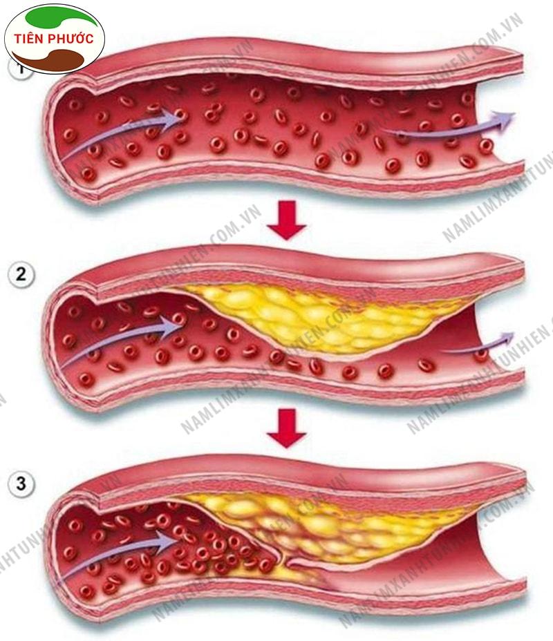 Xơ vữa động mạch vành gây ra nhiều biến chứng nguy hiểm