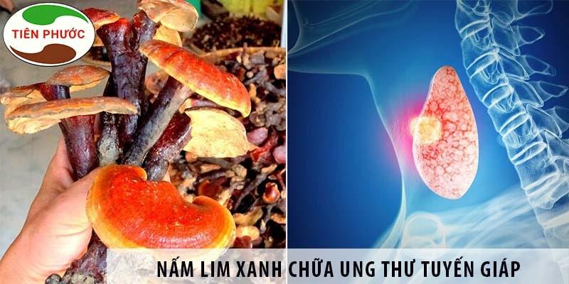 Nấm Lim Xanh Chữa Ung Thư Tuyến Giáp được Không?