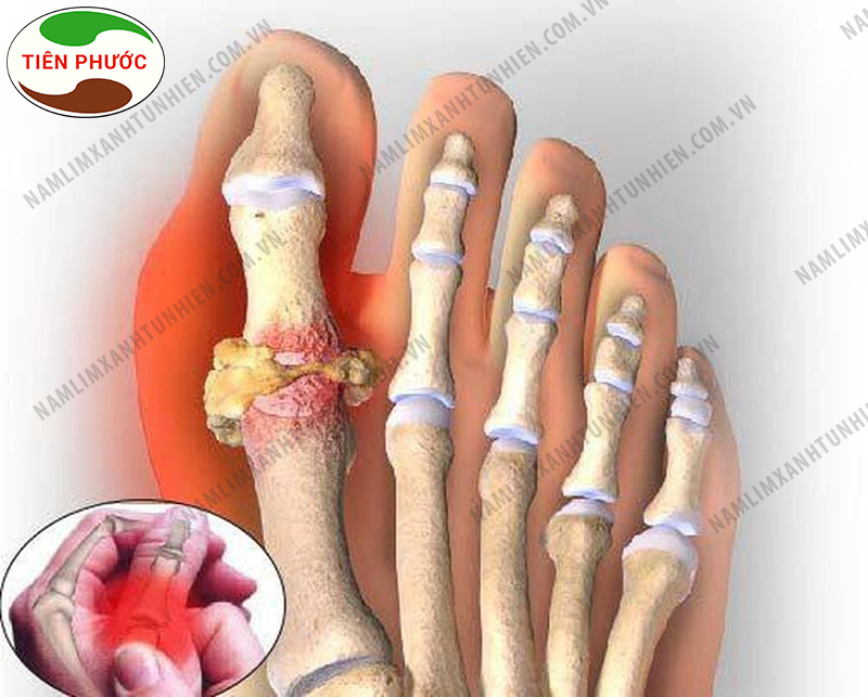 Nấm lim xanh chữa bệnh gout được không 1