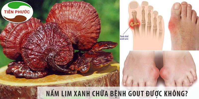 Nấm Lim Xanh Chữa Bệnh Gout được Không