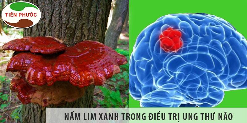 Tác Dụng Của Nấm Lim Xanh Trong điều Trị Ung Thư Não