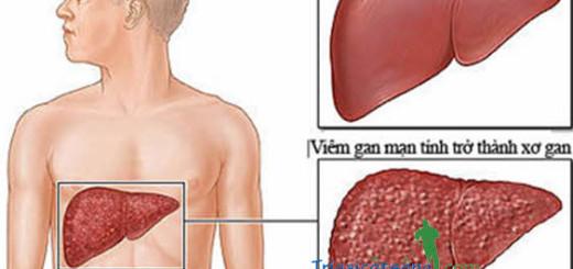 Nấm lim xanh trị bệnh xơ gan cổ chướng