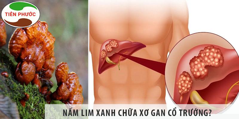 Nấm Lim Xanh Chữa Xơ Gan Cổ Trướng được Không?