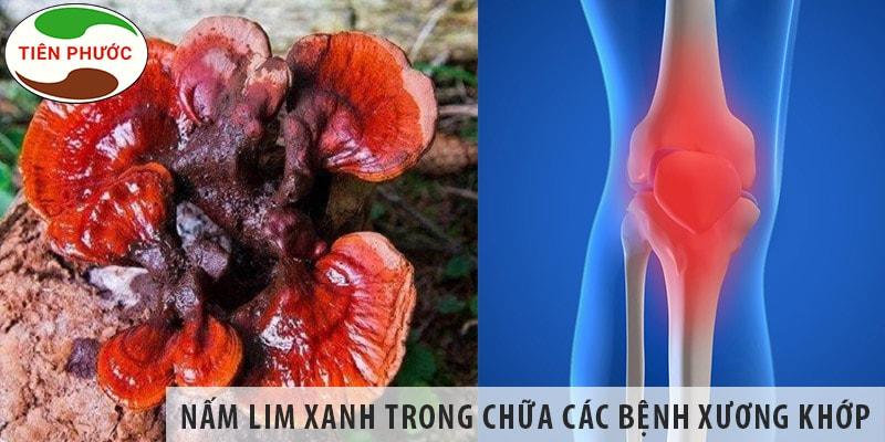 Tác Dụng Của Nấm Lim Xanh Trong Chữa Các Bệnh Về Xương Khớp