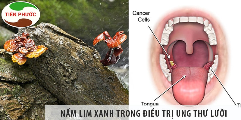 Tác Dụng Của Nấm Lim Xanh Trong Chữa Bệnh Ung Thư Lưỡi