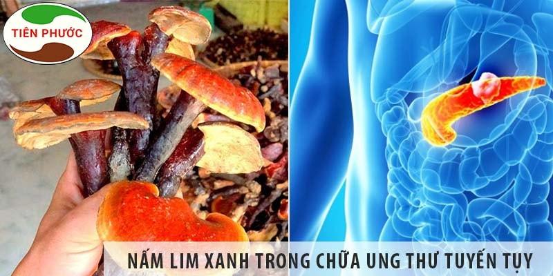 Tác Dụng Của Nấm Lim Xanh Trong Chữa Ung Thư Tuyến Tụy