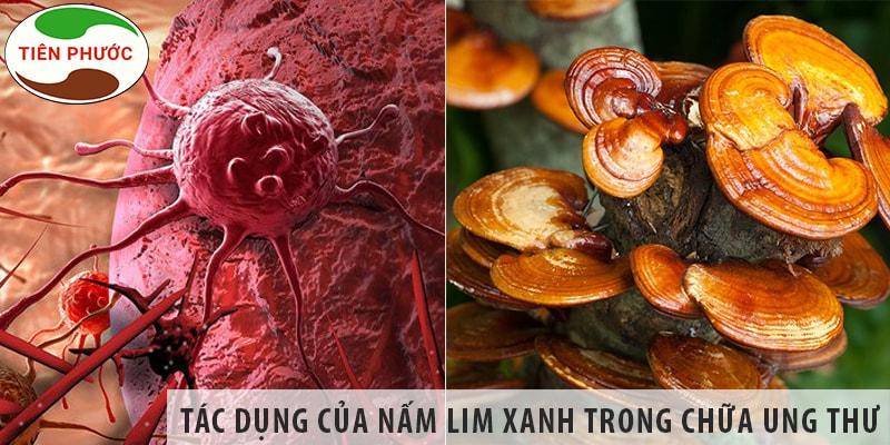 #1 Vì Sao Nấm Lim Xanh Có Thể Hỗ Trợ Chữa Ung Thư Hiệu Quả